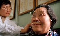بدء استخدام الطب الصيني التقليدي لعلاج حالات الالتهاب الرئوي الناتج عن كورونا