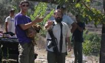 إصابة مواطن بحروق جراء اعتداء للمستوطنين شمال رام الله