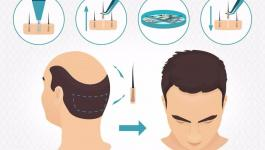تعرّف على أهم المعلومات بشان عملية زراعة الشعر بتقنية الاقتطاف