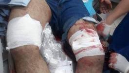 تشكيل لجنة تحقيق بحادثة إصابة شاب ورجل أمن في بيت لحم