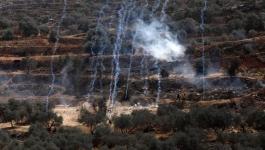 إصابتان بالرصاص المعدني خلال مواجهات مع الاحتلال في نابلس