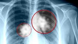 سرطان الرئة.jpg