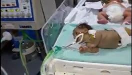 وفاة طفلة.jpg