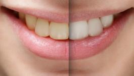 تبييض-الاسنان-750x297.jpg