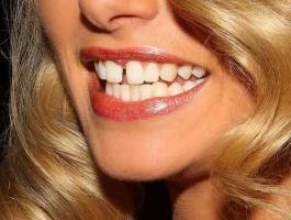 علماء: أسنانك تكشف حالة