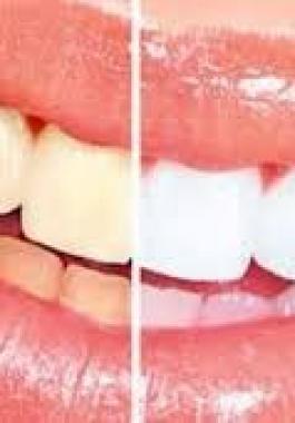 كيف تحمي أسنانك من