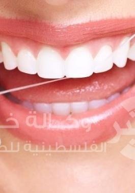 استخدام الخيط لتنظيف الاسنان