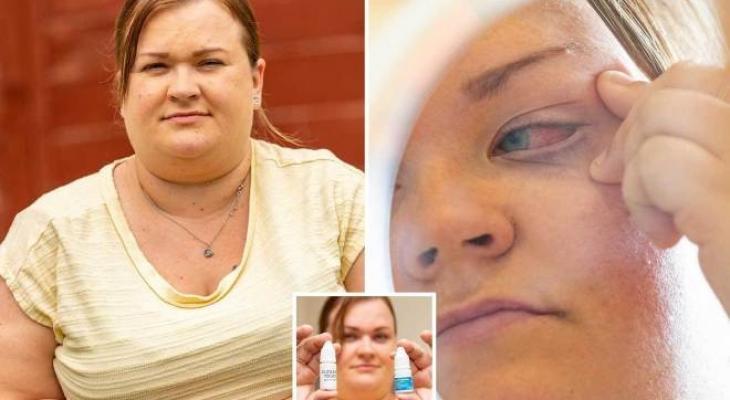 بريطانية تغلق عينها بعد وضع صمغ الأظافر بها بالخطأ.