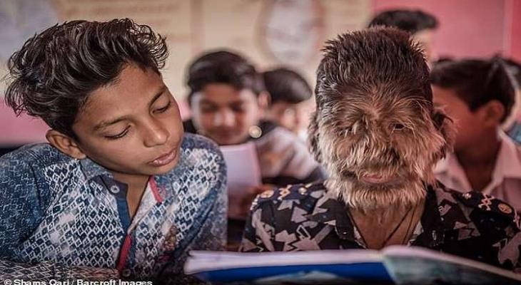"""شاهدوا:  ما قصة """"الطفل الذئب"""" في الهند؟"""