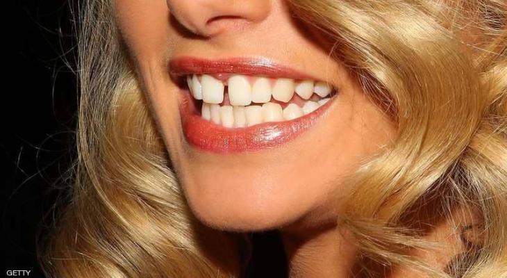 """علماء: أسنانك تكشف حالة """"صحتك العقلية"""""""