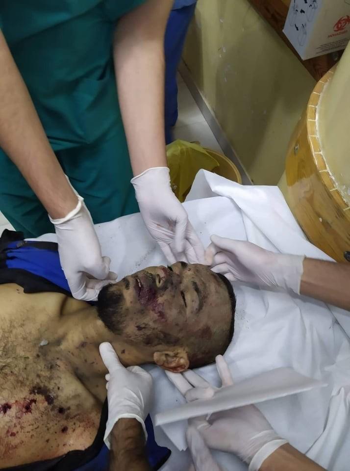 بالصور: 3 شهداء إثر قصف إسرائيلي شمال القطاع