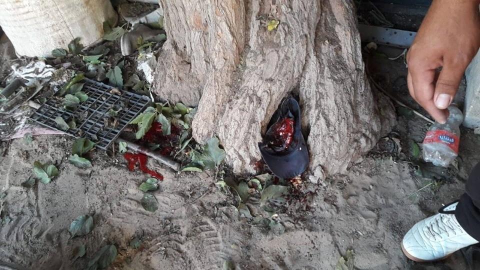 3 شهداء وإصابات جراء استهدافٍ لطائرات الاحتلال شمال قطاع غزة