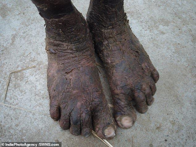 """بالصور: في حالة نادرة """"ثعبان بشري"""" في الهند يستحم كل ساعة!"""