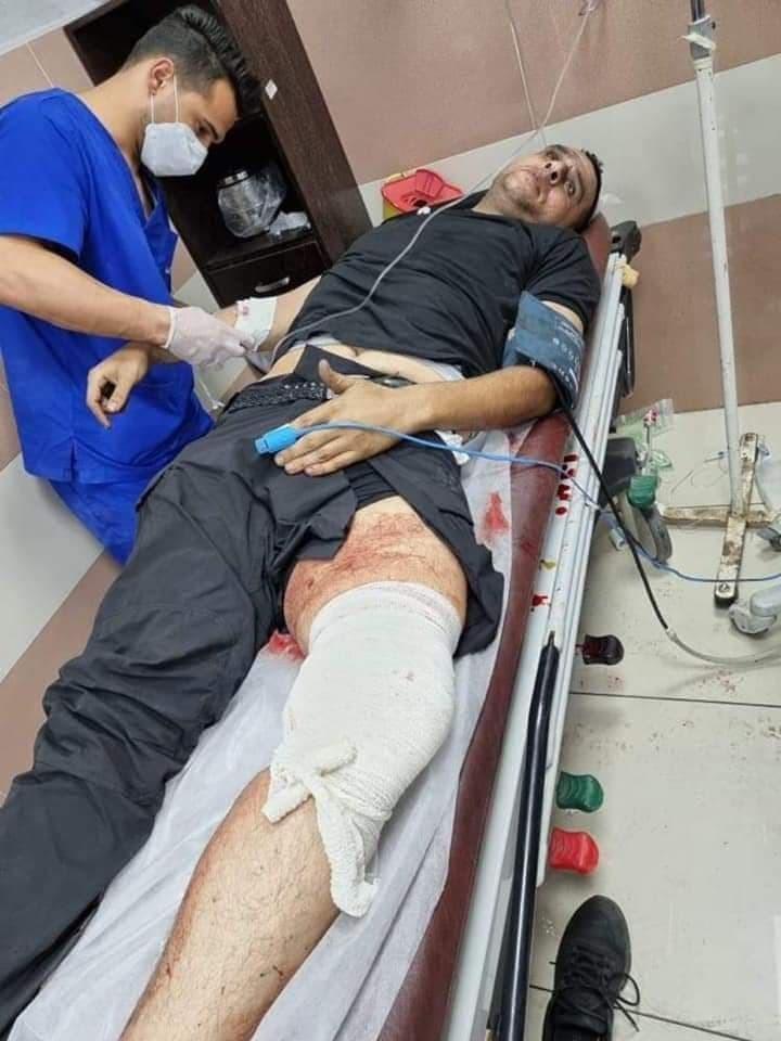 إصابة عضو إقليم رام الله والبيرة في حركة فتح برصاص الاحتلال في البيرة