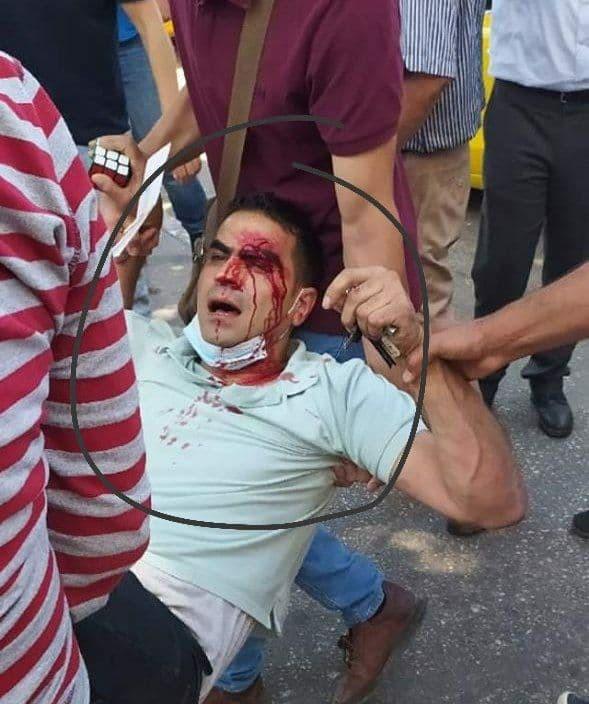 إصابة شاب خلال قمع الأجهزة الأمنية لتظاهرة مُنددة باغتيال الناشط نزار بنات